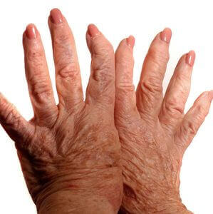 arthrofibrosis iPain