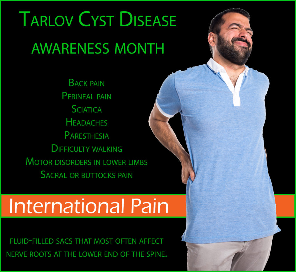 tarlov cyst disease international ipain foundation